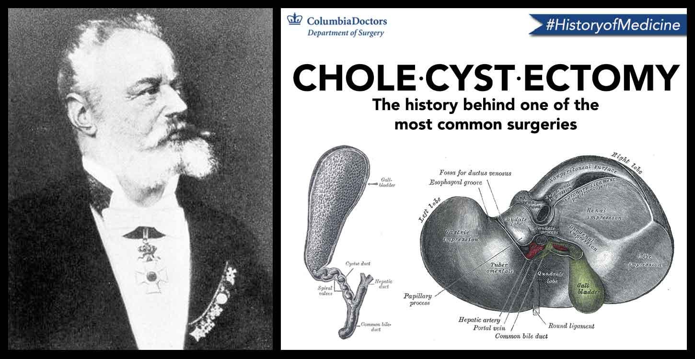 History Of Medicine The Galling Gallbladder Columbia University