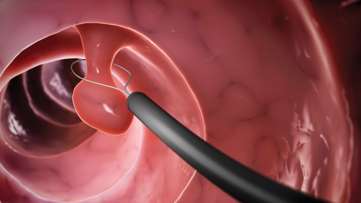 Nearly all cases of colorectal cancer begin with the growth of polyps, or benign growths of tissue, in the intestine. During colonoscopy, your doctor examines the inside of the rectum and entire colon through a flexible, lighted tube.