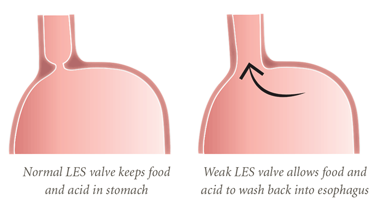 The most important valve for keeping stomach contents out of the esophagus and airway is the lower esophageal sphincter, referred to as the LES.