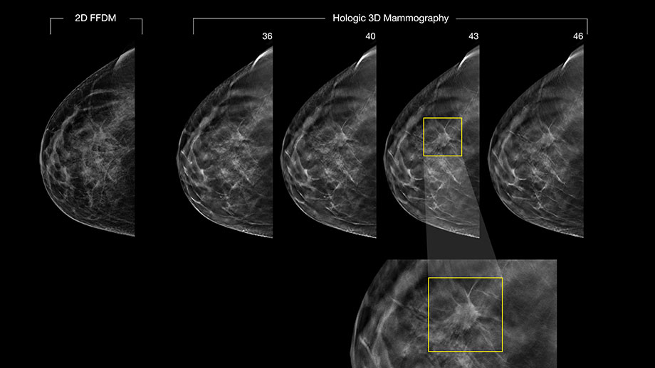 From Radiological Society of North America; Imaging shows a malignancy easily missed with 2D mammogram and clearly shown with 3D mammography