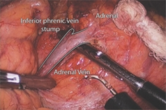 View of the left adrenal gland and left adrenal vein through the laparoscopic transabdominal approach
