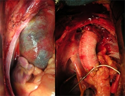 Before and after surgery to correct Type A dissection