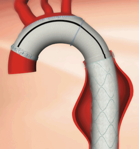 In the elephant trunk procedure, the aortic arch is repaired first. During this first phase, the aorta is prepared so that it can easily accept a thoracic stent graft, which is then placed in the second stage of the procedure.
