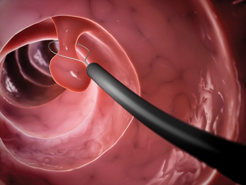 During colonoscopy, your doctor examines the inside of the rectum and entire colon through a flexible, lighted tube. The doctor may remove polyps and collect samples of tissue or cells for closer examination.
