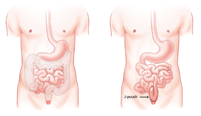 "When the large intestine and rectum are removed due to colorectal disease, another pathway must be devised for solid waste to exit the body. A J-pouch, a surgically created ""J"" shaped reservoir, is an alternate way to store and pass stool."
