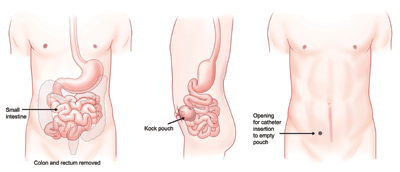 K-pouch surgery entails connection of the end of the small intestine to the skin of the abdomen. Unlike other ileostomies, which drain continuously into an external appliance (bag), the K-pouch includes a special valve that prevents waste from leaking out