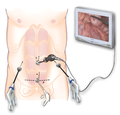 During laparoscopic surgery, surgical instruments and a tiny camera are inserted through small ports in the abdomen.