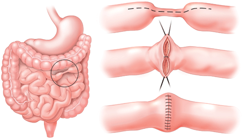 A stricture, or narrowing in a segment of the intestine. The illustrations above show the surgical approach to treat a stricture. We are experienced in performing this procedure using a minimally invasive approach.