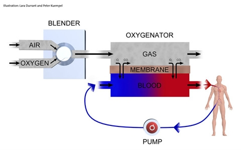 An illustration of how ECMO works.