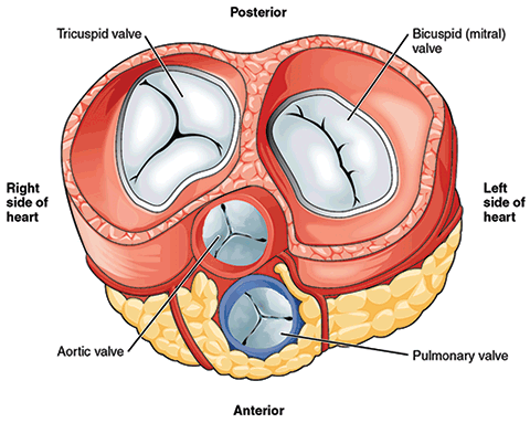 A damaged tricuspid valve (upper left) can leak,causing blood to flow back into the ventricle.