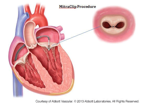 Mitral Valve Regurgitation Columbia University Department Of Surgery