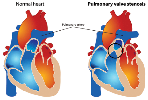 Pulmonary valve stenosis is a heart valve disorder in which outflow of blood from the right ventricle of the heart is obstructed at the level of the pulmonic valve. The most common cause of pulmonary valve stenosis is congenital heart disease.
