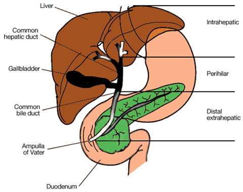 Bile Duct Cancer Cholangiocarcinoma Columbia