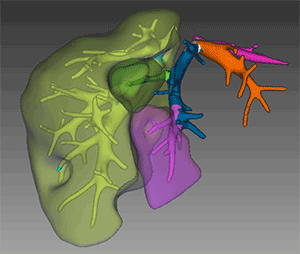 Liver segments are color-coded to map the architecture of hepatic veins