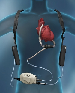 The Thoratec HeartMate II® Left Ventricular Assist Device (LVAD) is approved as both a bridge-to-transplantation and a destination therapy.