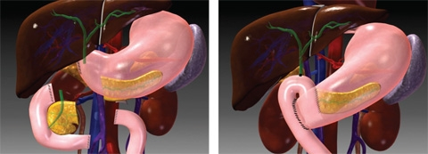 The Whipple procedure is the most common pancreatic cancer operation. A portion of the pancreas is removed, together with the lower portion of the stomach, the duodenum the gallbladder, and part of the common bile duct.