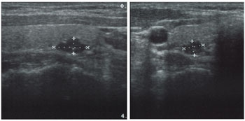 Ultrasound demonstrating a right lower parathyroid adenoma