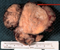 Parathyroid Cancer