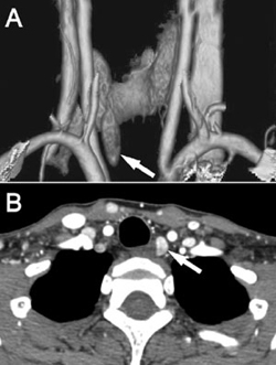 Parathyroid series images localizing a single abnormal left lower parathyroid gland