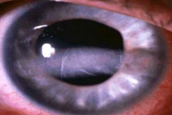 Very high calcium levels causing calcium deposits in the eyes called band keratopathy