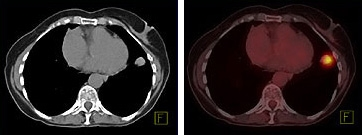 The CT image (left) shows a mass in the left lung. The combined PET/CT image (right) reveals the metabolic activity of that mass, as well as its precise location in the lung. Images courtesy of Siemens.