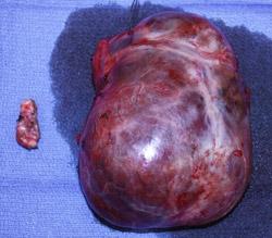 Multinodular Goiter Columbia University Department Of Surgery