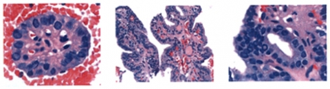 Cytology of papillary thyroid cancer