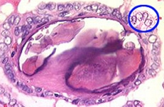 Fig 3. Psammoma body within a papillary cancer. Optically clear nuclei are circled in blue.