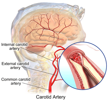 Fatty substances and cholesterol can build up in the carotid arteries over time, restricting blood flow to the brain and posing a risk for stroke.