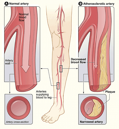 Plaque in unhealthy arteries reduces the flow of blood to the extremities.