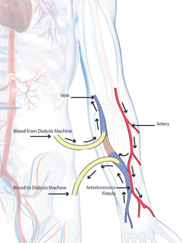 Vascular Access: Creating and Protecting Dialysis Patients