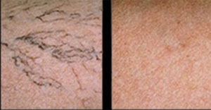 Before sclerotherapy (left) and After sclerotherapy (right)