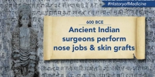 Ancient Indian Nose Jobs