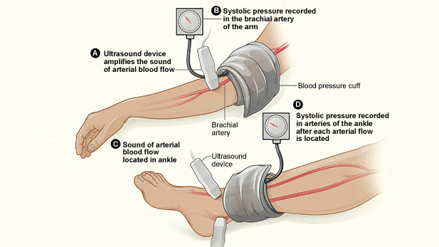 Noninvasive ankle brachial index testing can quickly and easily reveal whether blood pressure in the leg is abnormal.